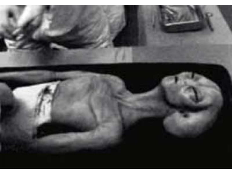 Fotografía de una autopsia a un ser extraterrestre