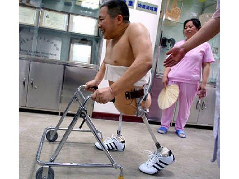 Peng Shulin el hombre milagro y la bio-robotica.