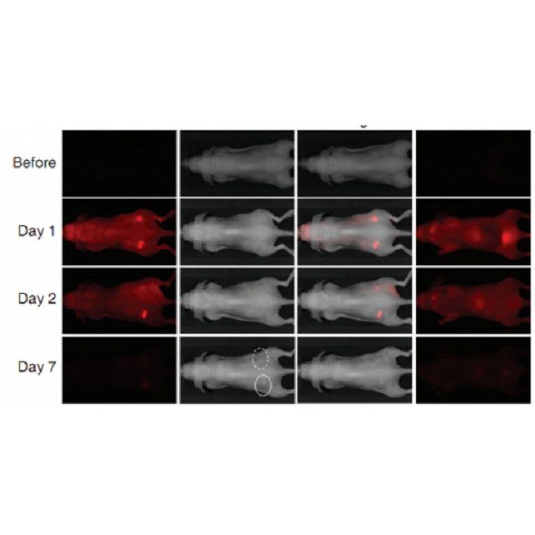 Tratamiento infrarrojo destruye el cáncer sin las secuelas de la quimioterapia